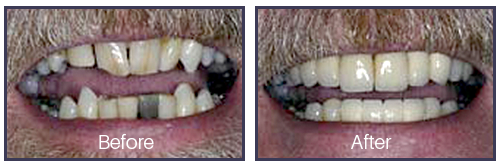 Dentist Sacramento - Before After 01