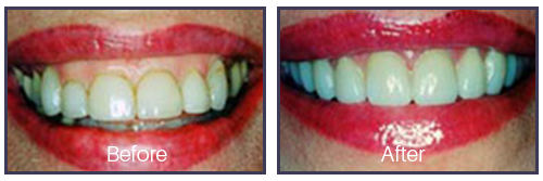 Dentist Sacramento - Before After 02
