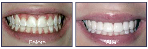 Dentist Sacramento - Before After 03