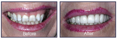 Dentist Sacramento - Before After 04