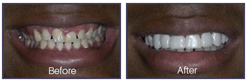 Dentist Sacramento - Before After 05