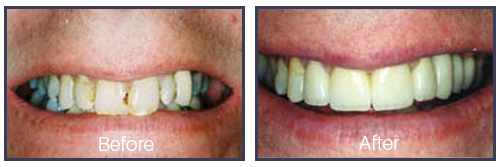 Dentist Sacramento - Before After 06