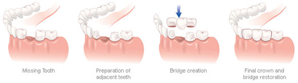 image Of Dental Crowns and Bridges