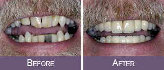 Dentist Sacramento - Patient Before After Image 01