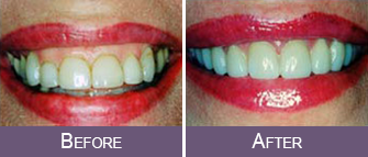 Dentist Sacramento - Patient Before After Image 02