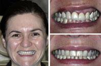 Dentist Sacramento - Gallery Photo 02