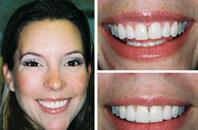 Dentist Sacramento - Gallery Photo 03