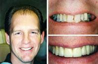 Dentist Sacramento - Gallery Photo 04