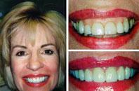 Dentist Sacramento - Gallery Photo 05