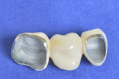 Sacramento dentists beautifully repair teeth with a porcelain crowns