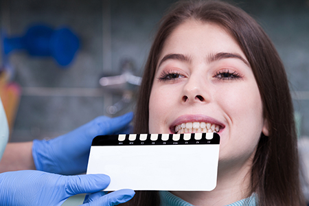Dental Veneers, Porcelain Veneers Process Sacramento