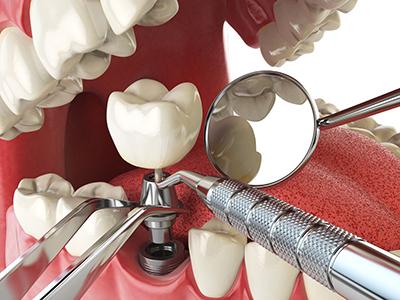 Dental Implant Best Restorations , Dr. Kosta J. Adams, Adams Dental Associates