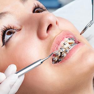 Braces for Straight Teeth, Dr. Kosta J. Adams, Adams Dental Associates