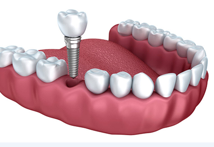 Cosmetic Dental Implants , Dr. Kosta J. Adams, Adams Dental Associates