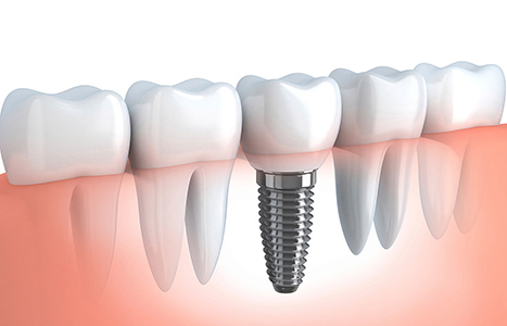 Images of Cosmetic Dental Implants, Dr. Kosta J. Adams, Adams Dental Associates