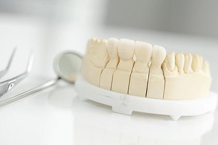 Images of Dental Crowns and Bridges , Dr. Kosta J. Adams, Adams Dental Associates
