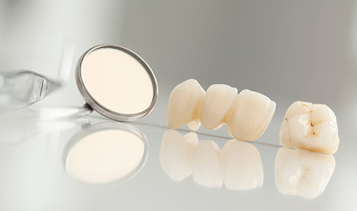 Dental Bridge as a Good Choice , Dr. Kosta J. Adams, Adams Dental Associates
