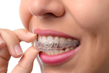 Images of Orthodontics Dental Treatment, Dr. Kosta J. Adams, Adams Dental Associates