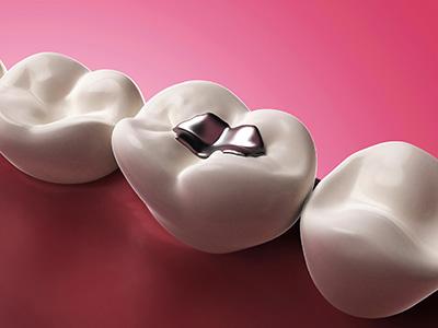 Images of Porcelain Fillings , Dr. Kosta J. Adams, Adams Dental Associates