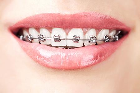 Images of Removable Braces Sacramento, Dr. Kosta J. Adams, Adams Dental Associates