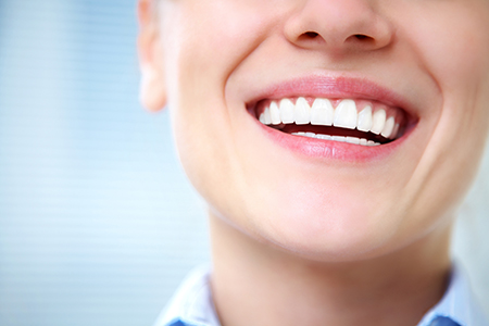 Images of Teeth Bonding Sacramento, Dr. Kosta J. Adams, Adams Dental Associates