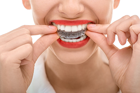 Images of Transparent Braces Sacramento, Dr. Kosta J. Adams, Adams Dental Associates