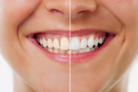 Images of Professional Teeth Whitening Services , Dr. Kosta J. Adams, Adams Dental Associates