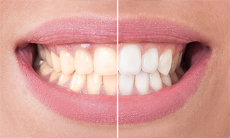 whitening option is available for Sacramento, CA