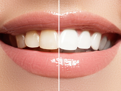 What is Teeth Whitening in Sacramento area
